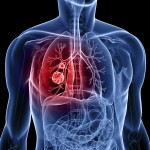 Longer telomere length associated with increased lung cancer risk