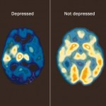 Telomerase production in brain linked to modulation of depression